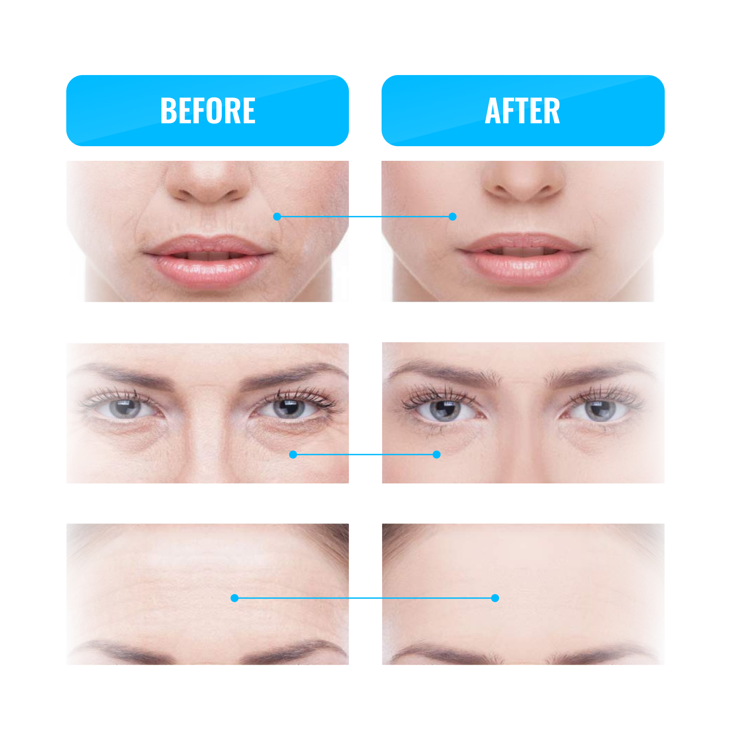 anti age wrinkle remover GESS MT